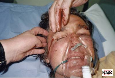 Anti snare campaigner, John Gill, was attacked in his own home following his one-man campaign to rid the Northumberland countryside of snares. 21st September, 2001